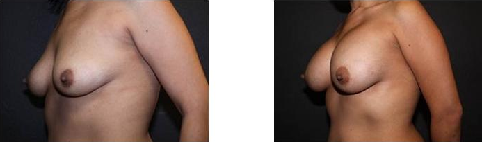 Breast Augmentation Before and After 10