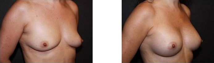 Breast Augmentation Before and After 21