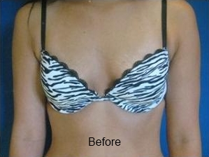 Breast Augmentation Procedure